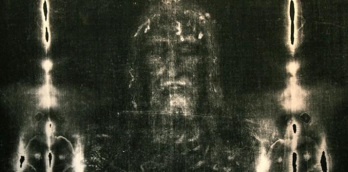 Jesucristo sufrió una luxación mandibular por los golpes recibidos
