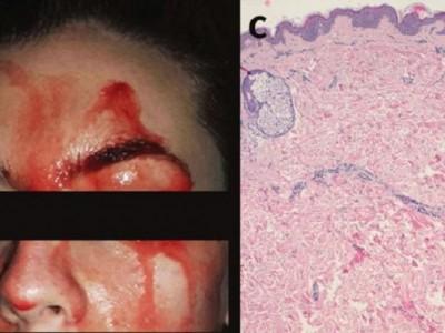 Una joven italiana de 21 años suda sangre en la cara y las manos